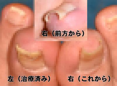 巻き爪02.jpg