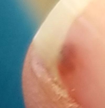 爪に棘02.jpg